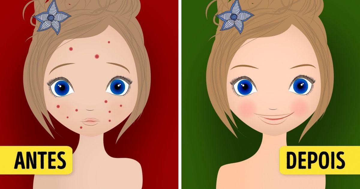 Dois métodos incríveis para acabar com asmanchas napele