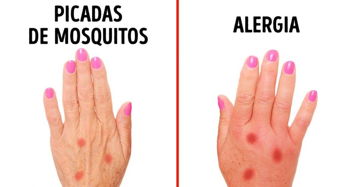 3sinais que ajudam aidentificar uma alergia