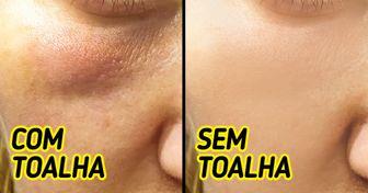 Por que não é indicado usar toalha para secar o rosto (e algumas dicas para substituí-la)