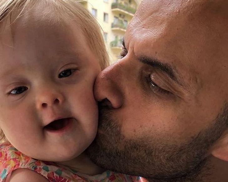 Homem solteiro adota uma menina de 13 dias com síndrome de Down que já tinha sido rejeitada 20 vezes