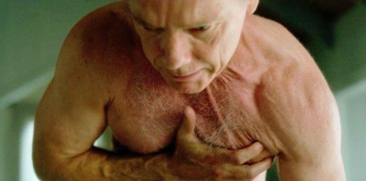 10Sintomas que podem indicar que seu corpo precisa demais iodo