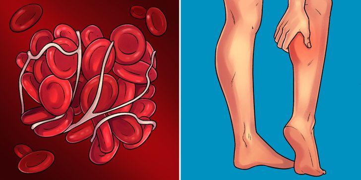 Sinais que permitem identificar 10doenças precocemente