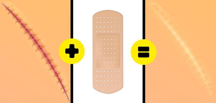 10Dicas para eliminar todos ostipos decicatrizes eajudar acurá-las