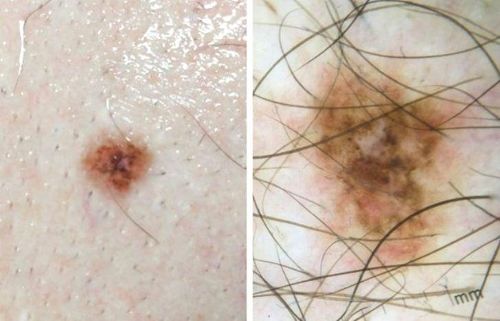 Eu tive um melanoma, e quero falar sobre como detectar esta doença a tempo