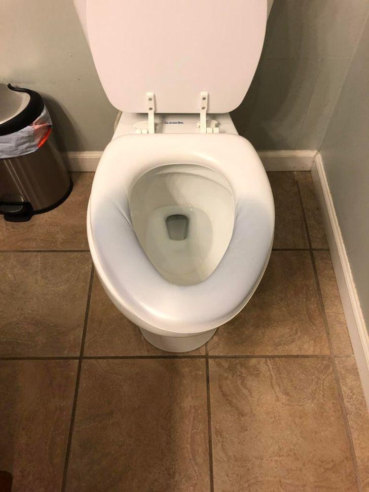 Por que o assento do vaso sanitário de algumas pessoas pode ficar azul